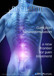 Ganglion Neurostimulation