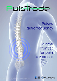 Pulsed Radiofrequency with Pulstrode