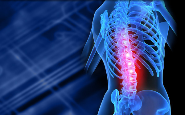 Spinal radiculopathies, Chronic Low back Pain